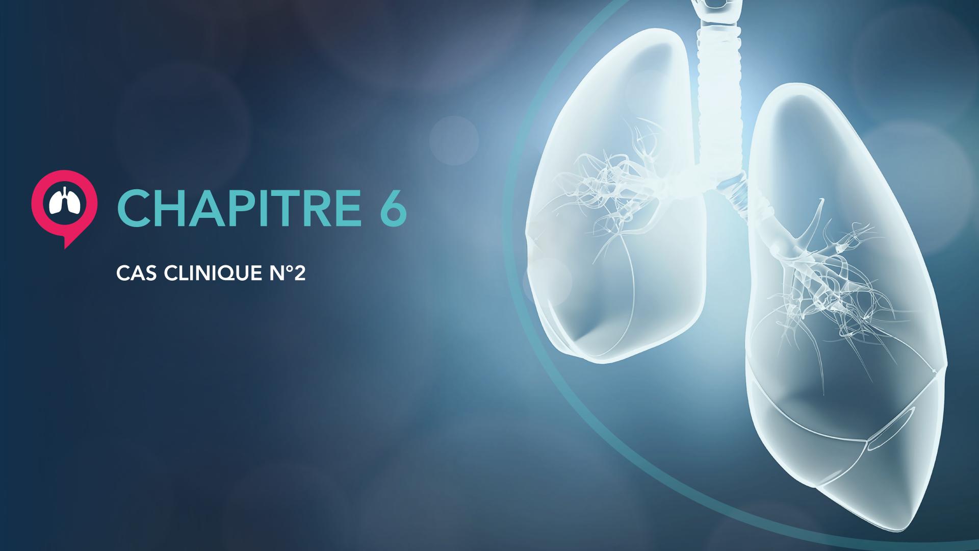 Vignettes-videos_Chapitre-6